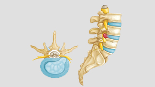 Disc Herniations, Protrusions, Bulges and Ruptures